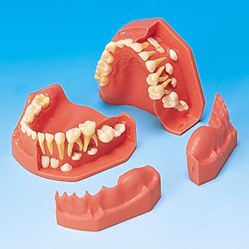 歯列発育模型